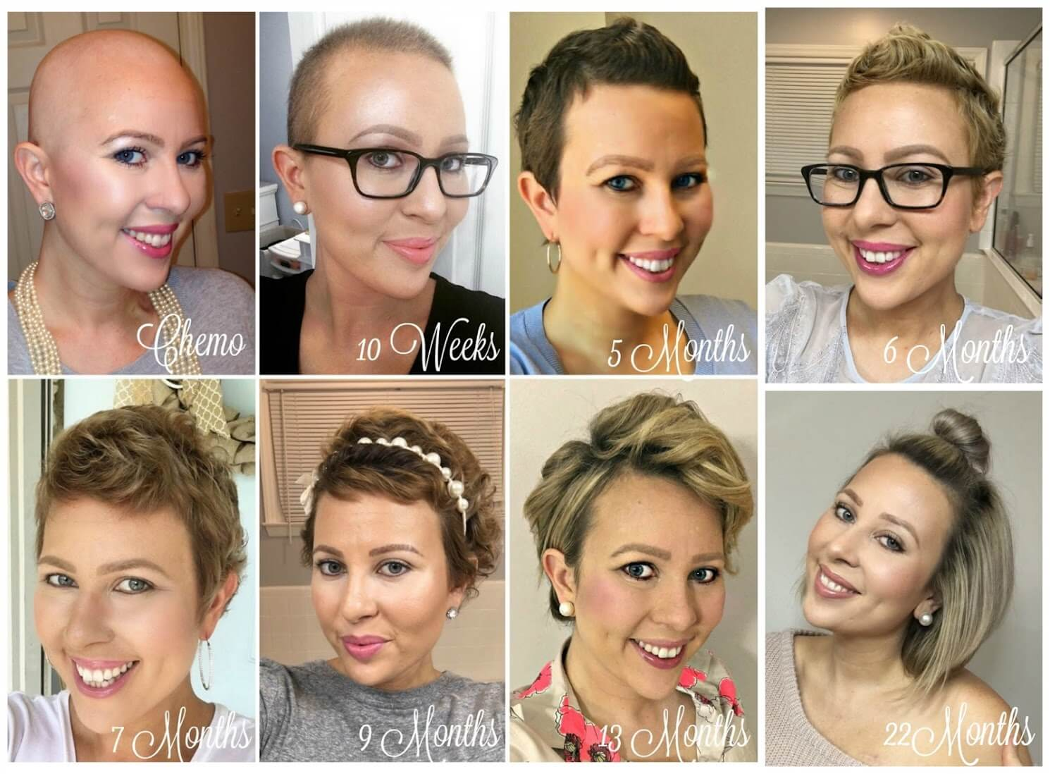 From Bald To Beautiful Tresses The Cancer Thriver S Guide To Hair Regrowth Cancer Be Glammed
